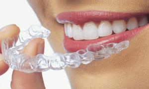 Tratament nou și invizibil pentru îndreptarea dinților