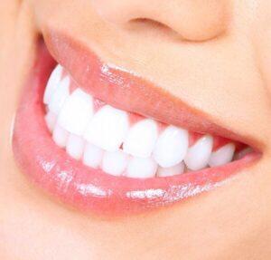 Cât de recomandat este să îmi albesc dinții după îndepărtarea aparatului dentar