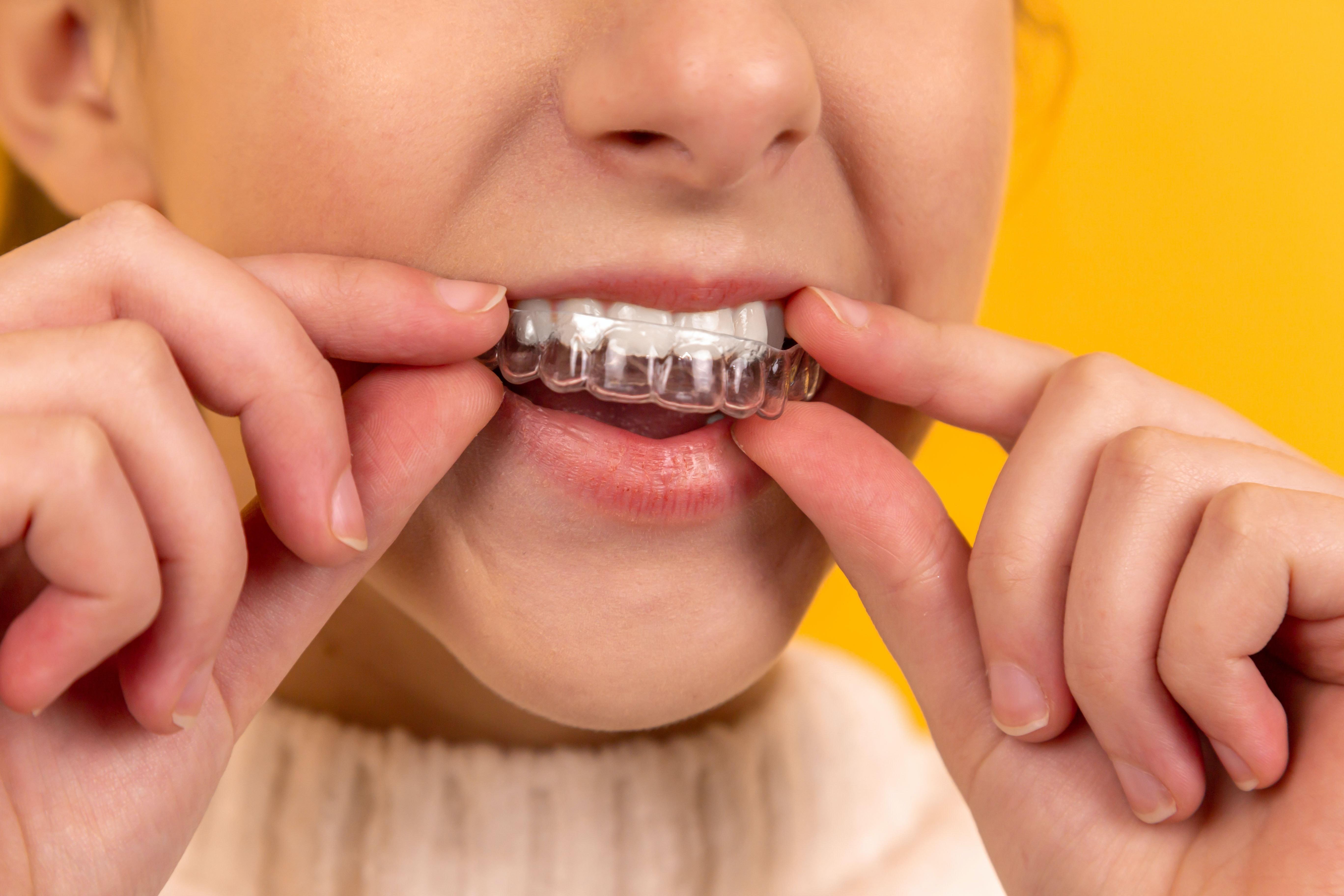 Dinții impactați. Cum se tratează aglomerarea dentară?