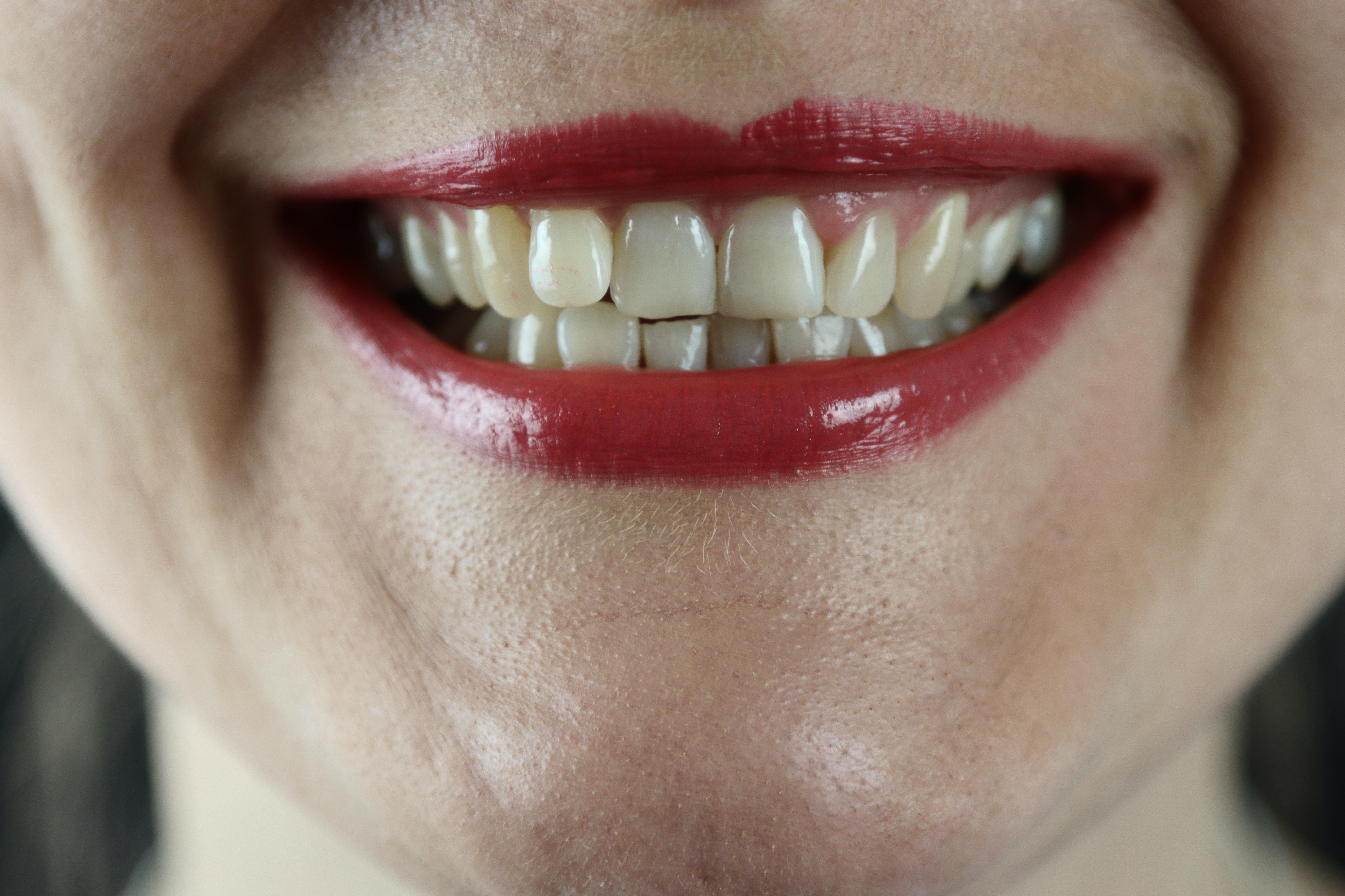 Depistarea ocluziei dentare incorecte. Cauze, simptome, tratament